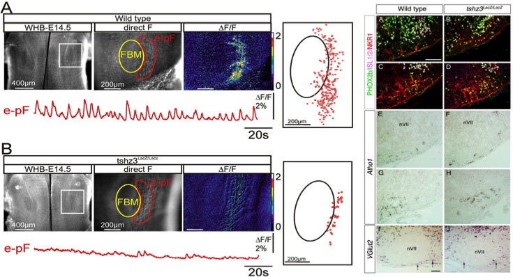 In Tshz3LacZ/LacZ mutant, neurons from the para-facial respiratory group do not exhibit their characteristic rhythmic activity by the Fasano Team from IBDM, IBDML